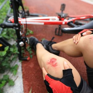bike-injuries-woman-cyclist-fell-down-while-cycling-royalty-free-image-1601410578-1